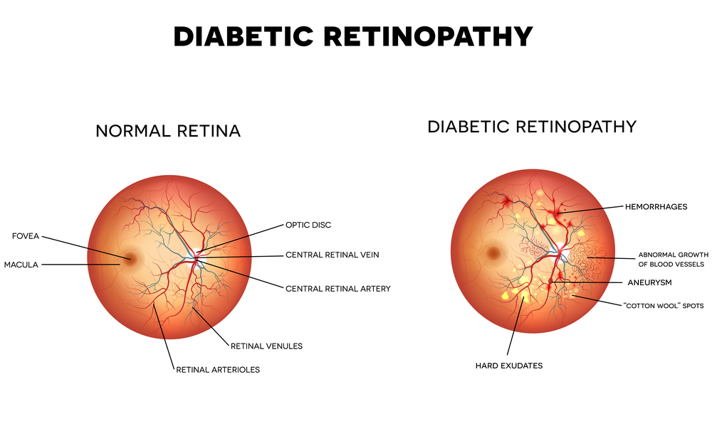 diabetic retinopathy diagram comparison of a diabetic retinopathy retina versus a normal retina